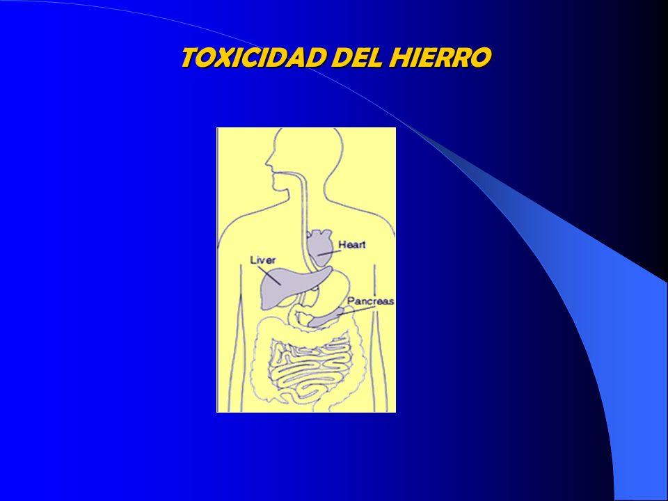 BALANCE DE HIERRO Eritropoyesis Ineficaz Expansión médula ósea Incremento catabolismo Hb Acumulación de Hierro Transfusiones Aumento absorción digestiva