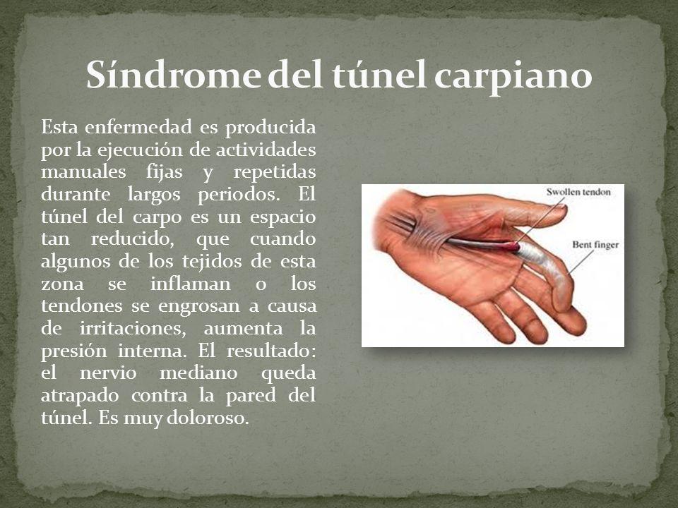 Esta enfermedad es producida por la ejecución de actividades manuales fijas y repetidas durante largos periodos. El túnel del carpo es un espacio tan