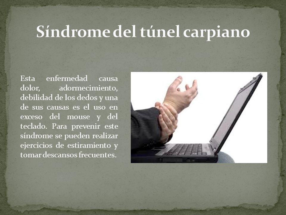 Esta enfermedad causa dolor, adormecimiento, debilidad de los dedos y una de sus causas es el uso en exceso del mouse y del teclado. Para prevenir est