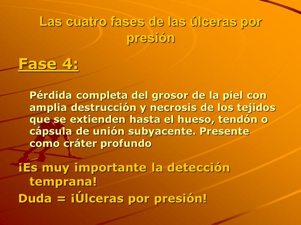 Las cuatro fases de las úlceras por presión Fase 4: Pérdida completa del grosor de la piel con amplia destrucción y necrosis de los tejidos que se extienden hasta el hueso, tendón o cápsula de unión subyacente.