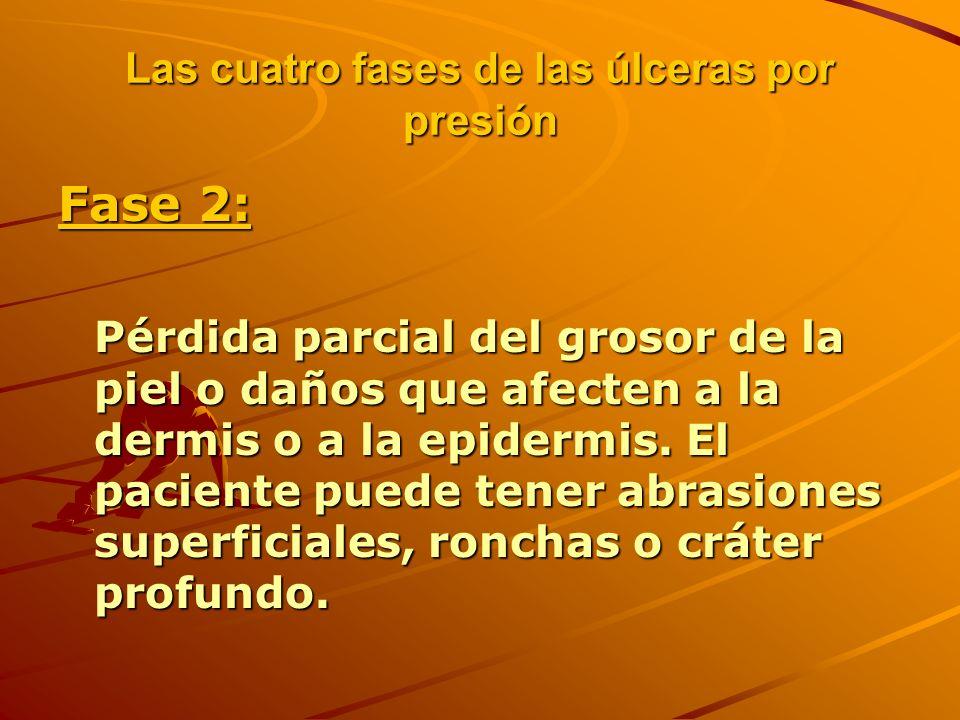 Las cuatro fases de las úlceras por presión Fase 2: Pérdida parcial del grosor de la piel o daños que afecten a la dermis o a la epidermis.