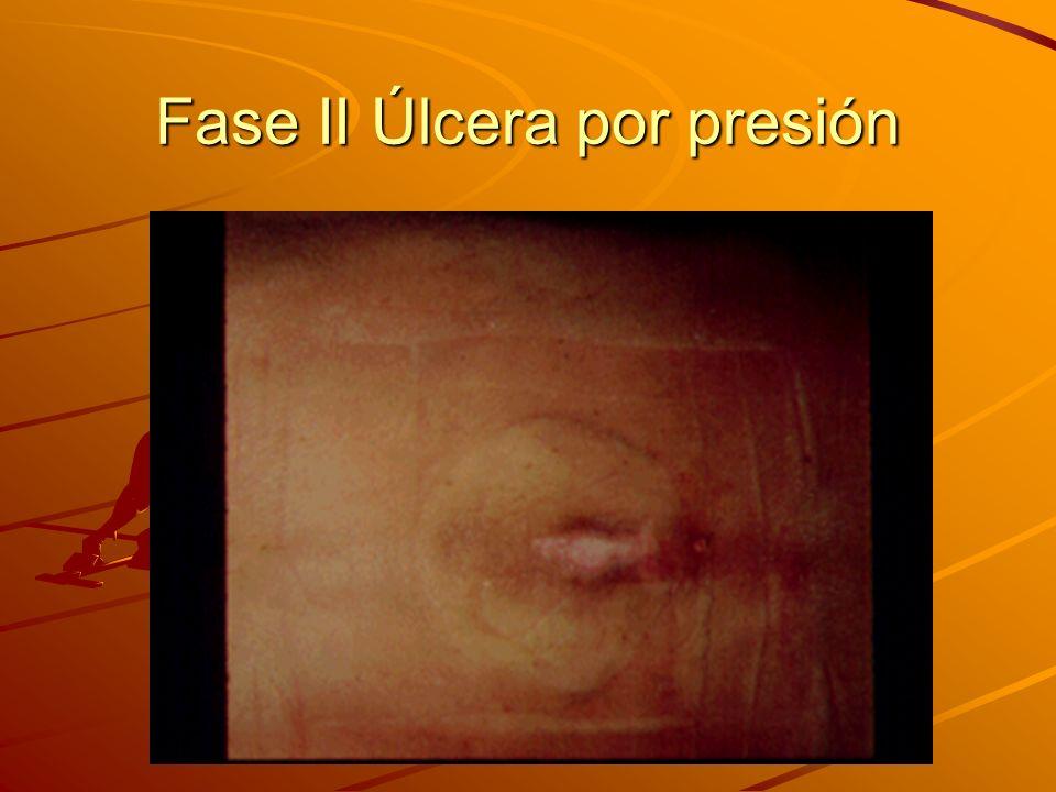 Las cuatro fases de las úlceras por presión Fase 3: Pérdida completa del grosor de la piel incluyendo daños o necrosis de tejidos subcutáneos, pero no a través de la fascia subcutánea y sin extenderse al hueso, tendón o cápsula de unión subyacente.