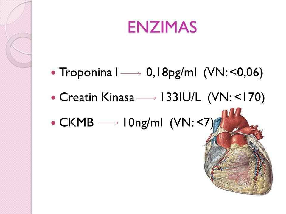 ENZIMAS Troponina I 0,18pg/ml (VN: <0,06) Creatin Kinasa 133IU/L (VN: <170) CKMB 10ng/ml (VN: <7)