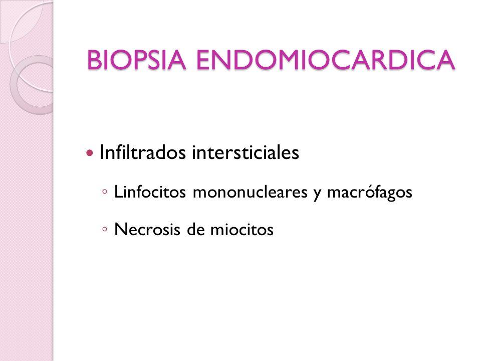 BIOPSIA ENDOMIOCARDICA Infiltrados intersticiales Linfocitos mononucleares y macrófagos Necrosis de miocitos