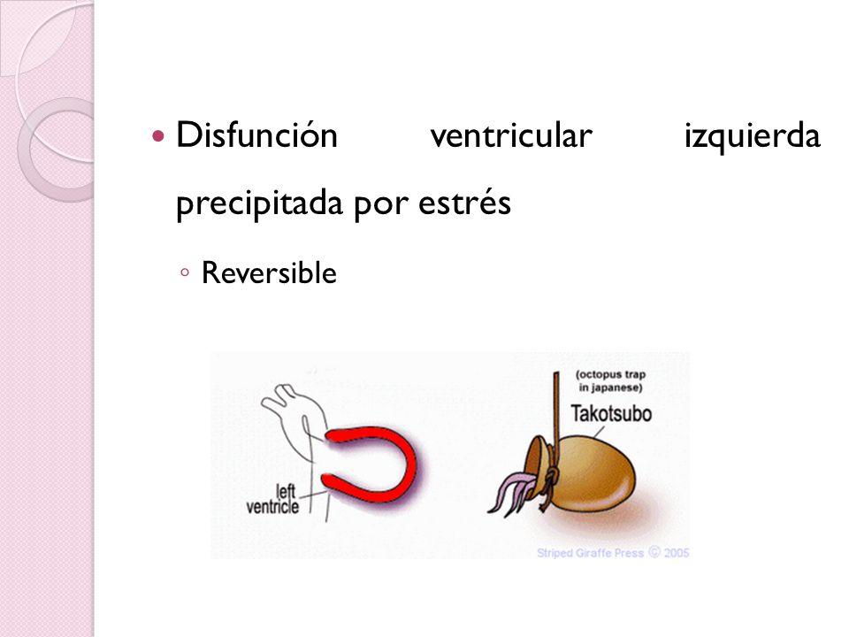 Disfunción ventricular izquierda precipitada por estrés Reversible