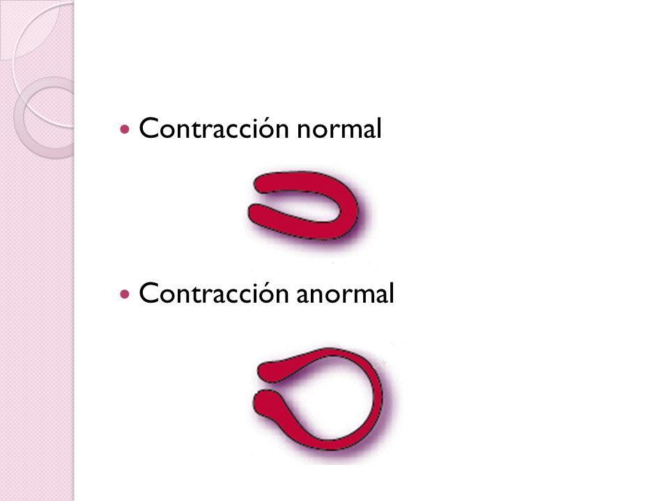 Contracción normal Contracción anormal