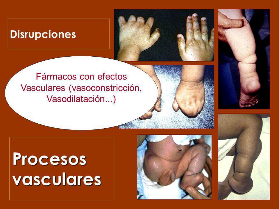 Procesos vasculares Disrupciones Fármacos con efectos Vasculares (vasoconstricción, Vasodilatación...)