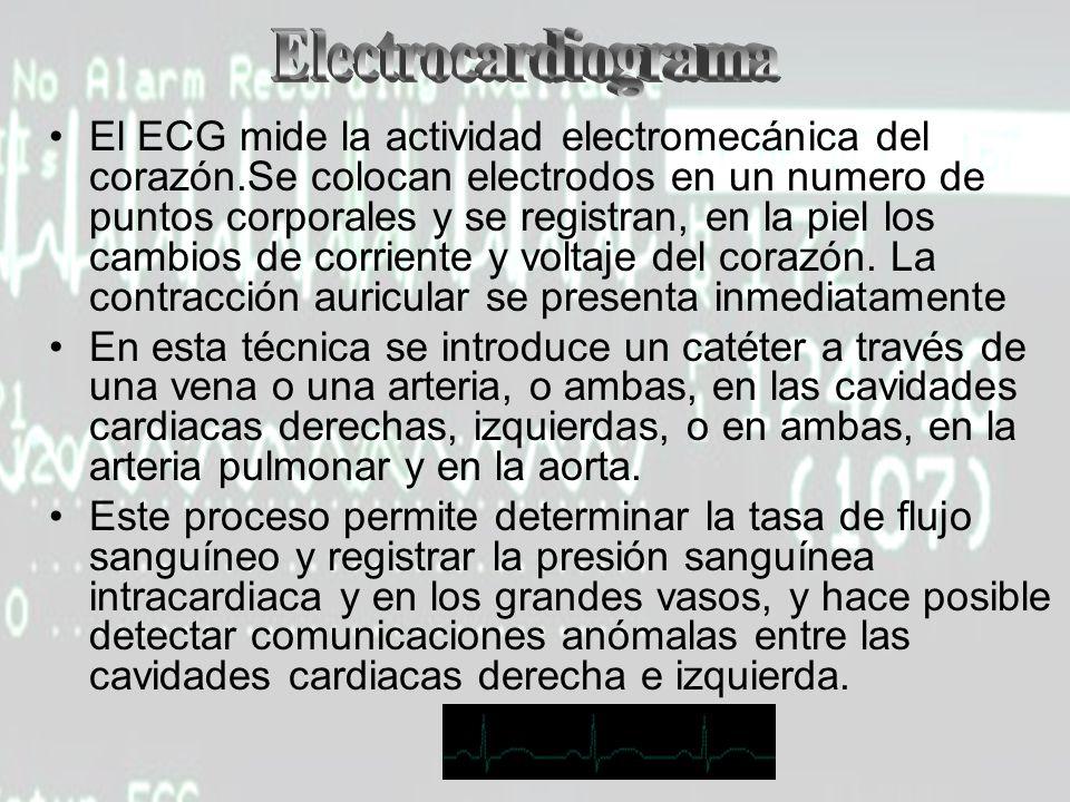 El ECG mide la actividad electromecánica del corazón.Se colocan electrodos en un numero de puntos corporales y se registran, en la piel los cambios de