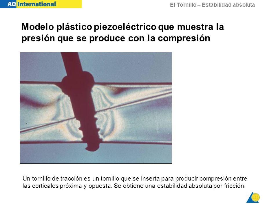 El Tornillo – Estabilidad absoluta Modelo plástico piezoeléctrico que muestra la presión que se produce con la compresión Un tornillo de tracción es u