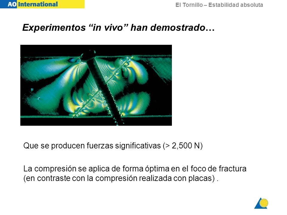 El Tornillo – Estabilidad absoluta Que se producen fuerzas significativas (> 2,500 N) La compresión se aplica de forma óptima en el foco de fractura (
