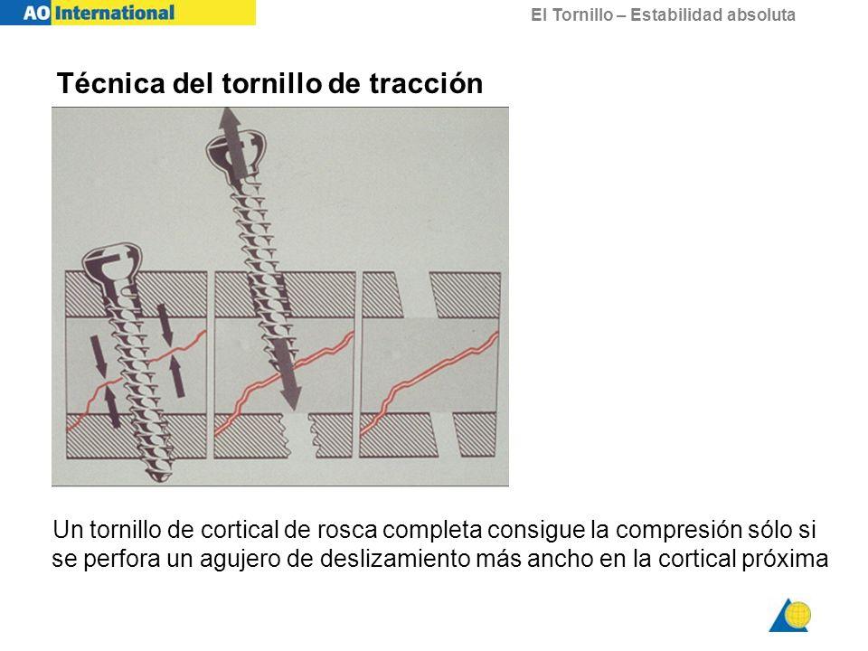El Tornillo – Estabilidad absoluta Un tornillo de cortical de rosca completa consigue la compresión sólo si se perfora un agujero de deslizamiento más