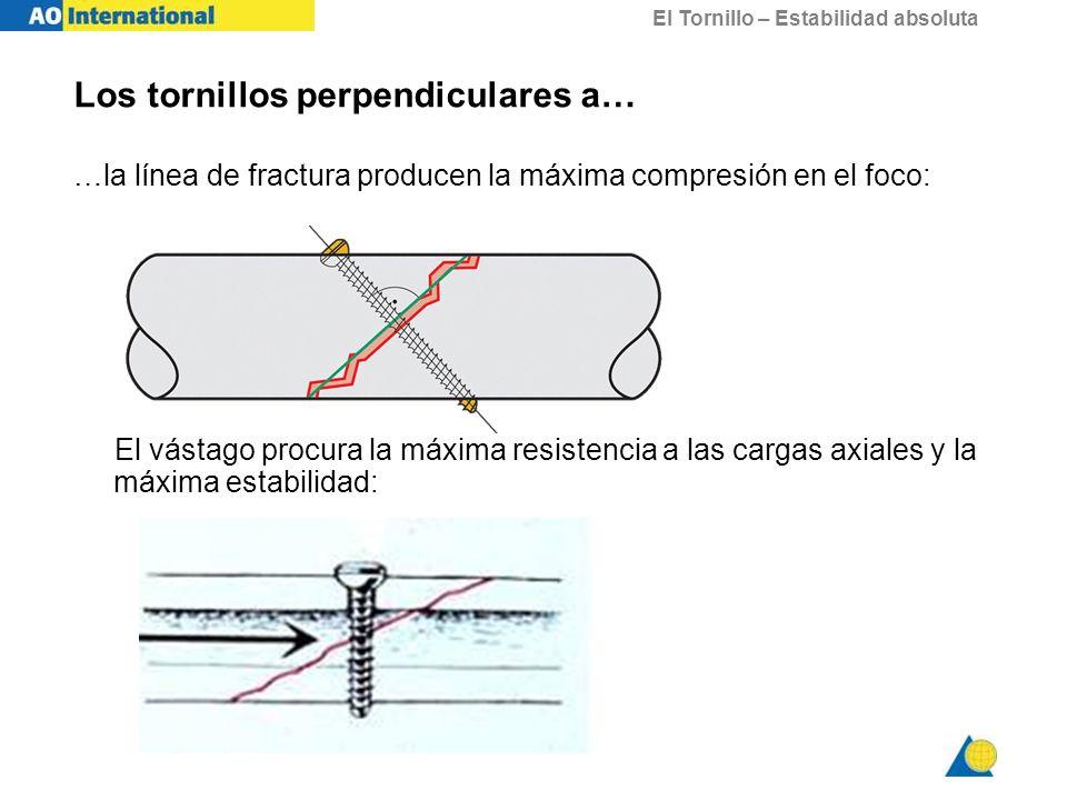 El Tornillo – Estabilidad absoluta Los tornillos perpendiculares a… …la línea de fractura producen la máxima compresión en el foco: El vástago procura