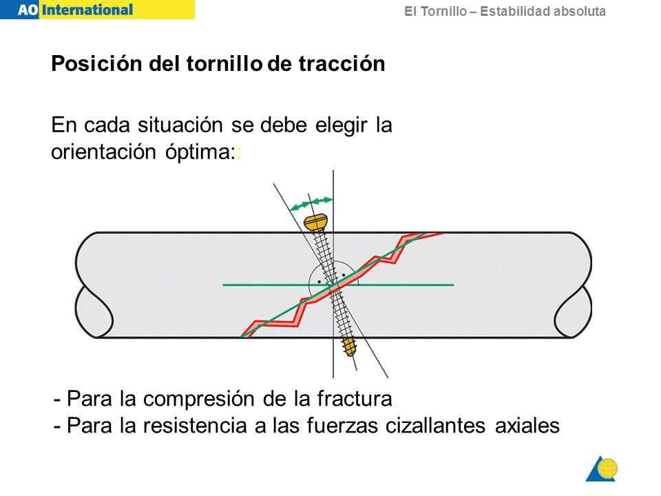 El Tornillo – Estabilidad absoluta Posición del tornillo de tracción En cada situación se debe elegir la orientación óptima:: - Para la compresión de