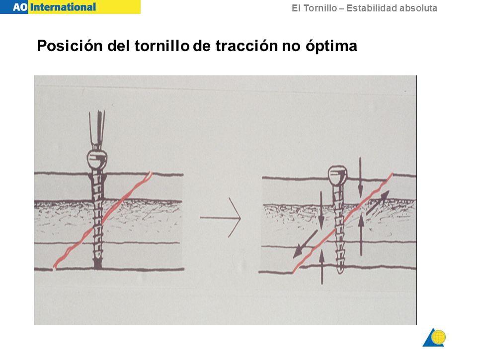 El Tornillo – Estabilidad absoluta Posición del tornillo de tracción no óptima