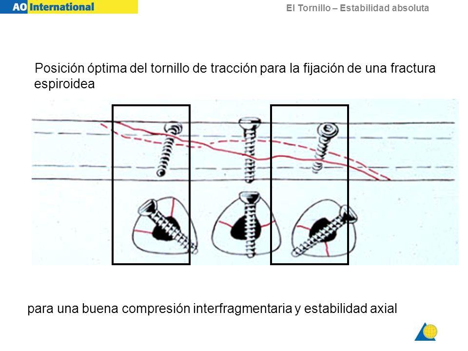 El Tornillo – Estabilidad absoluta Posición óptima del tornillo de tracción para la fijación de una fractura espiroidea para una buena compresión inte