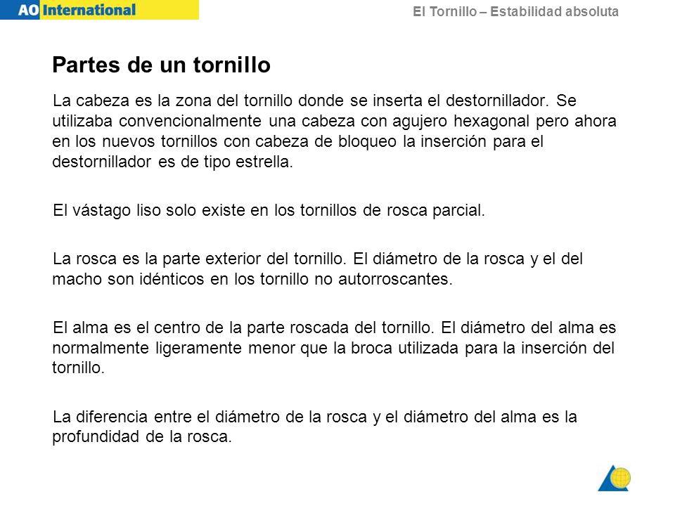 El Tornillo – Estabilidad absoluta Utilización de tornillos de rosca parcial como tornillo de tracción