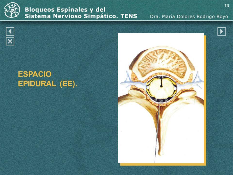 16 ESPACIO EPIDURAL (EE).