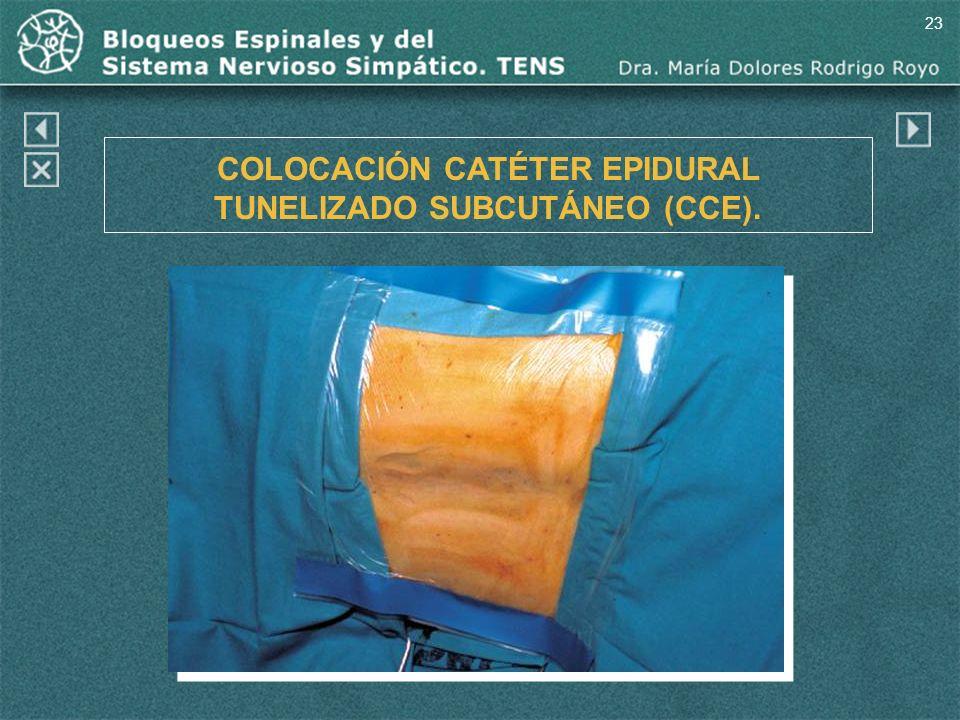 23 COLOCACIÓN CATÉTER EPIDURAL TUNELIZADO SUBCUTÁNEO (CCE).