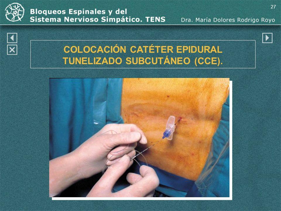 27 COLOCACIÓN CATÉTER EPIDURAL TUNELIZADO SUBCUTÁNEO (CCE).