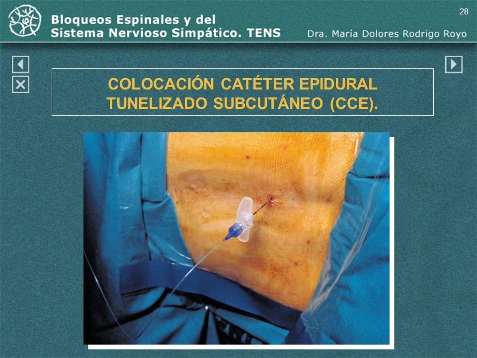 28 COLOCACIÓN CATÉTER EPIDURAL TUNELIZADO SUBCUTÁNEO (CCE).