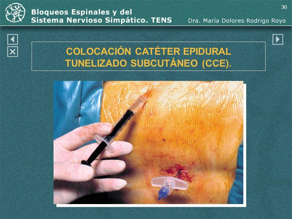 30 COLOCACIÓN CATÉTER EPIDURAL TUNELIZADO SUBCUTÁNEO (CCE).