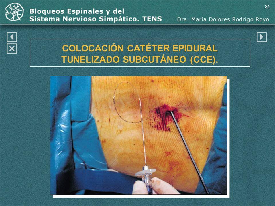 31 COLOCACIÓN CATÉTER EPIDURAL TUNELIZADO SUBCUTÁNEO (CCE).