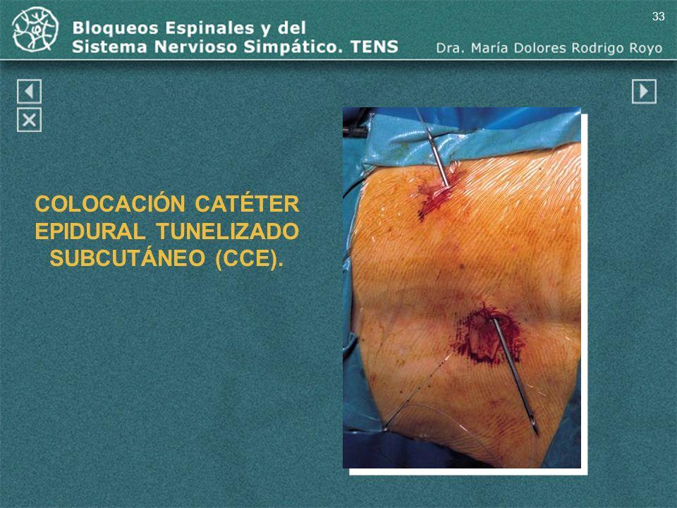 33 COLOCACIÓN CATÉTER EPIDURAL TUNELIZADO SUBCUTÁNEO (CCE).