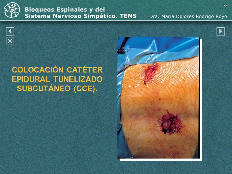 34 COLOCACIÓN CATÉTER EPIDURAL TUNELIZADO SUBCUTÁNEO (CCE).