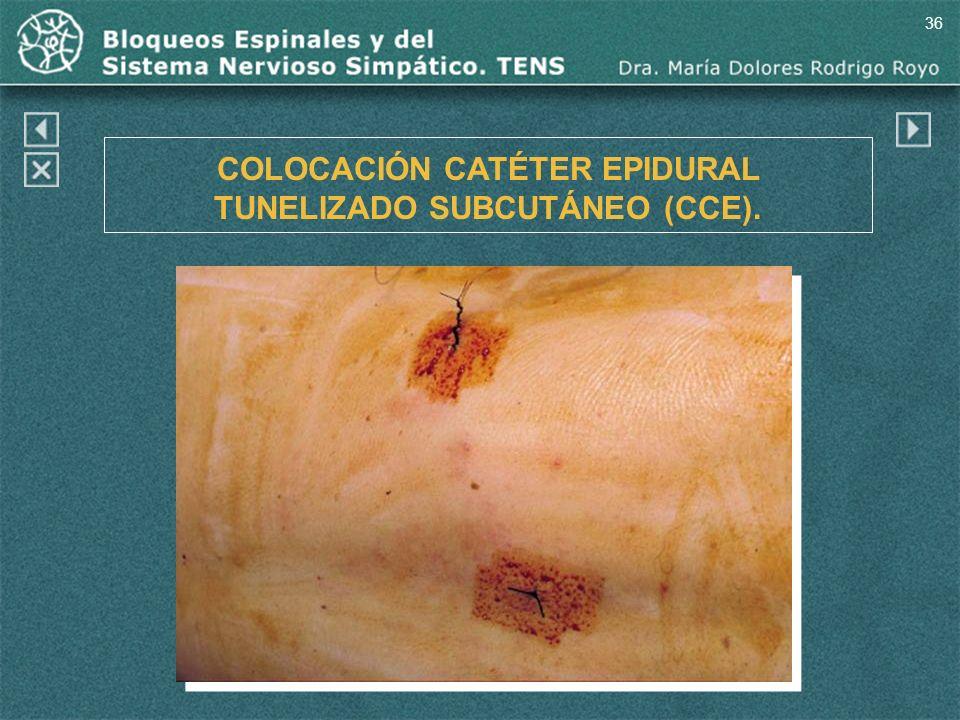 36 COLOCACIÓN CATÉTER EPIDURAL TUNELIZADO SUBCUTÁNEO (CCE).