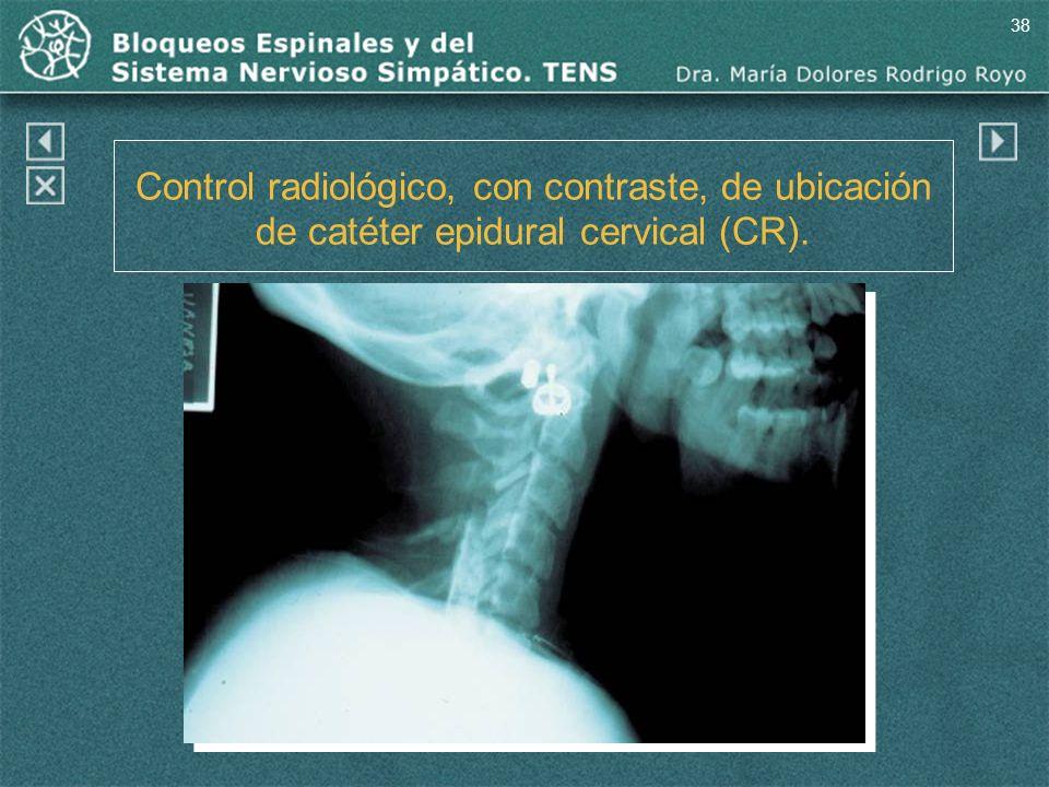 38 Control radiológico, con contraste, de ubicación de catéter epidural cervical (CR).