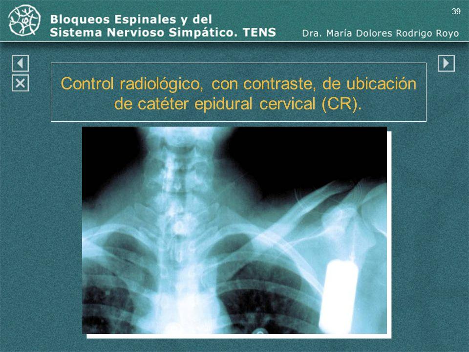 39 Control radiológico, con contraste, de ubicación de catéter epidural cervical (CR).