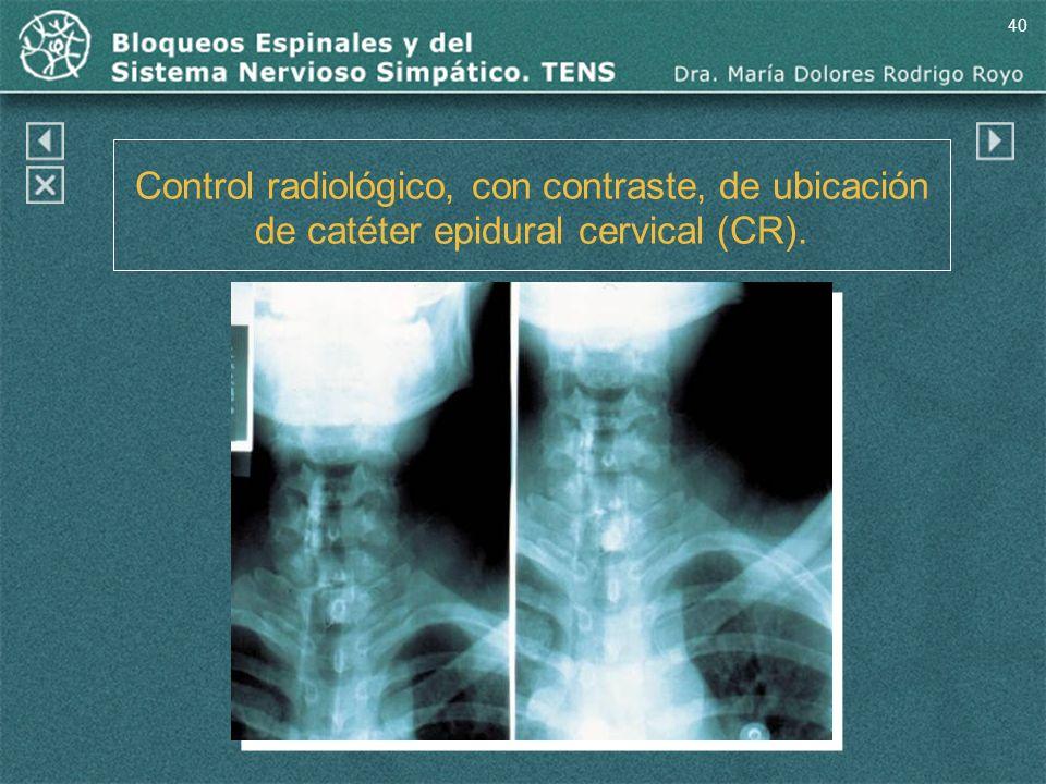 40 Control radiológico, con contraste, de ubicación de catéter epidural cervical (CR).