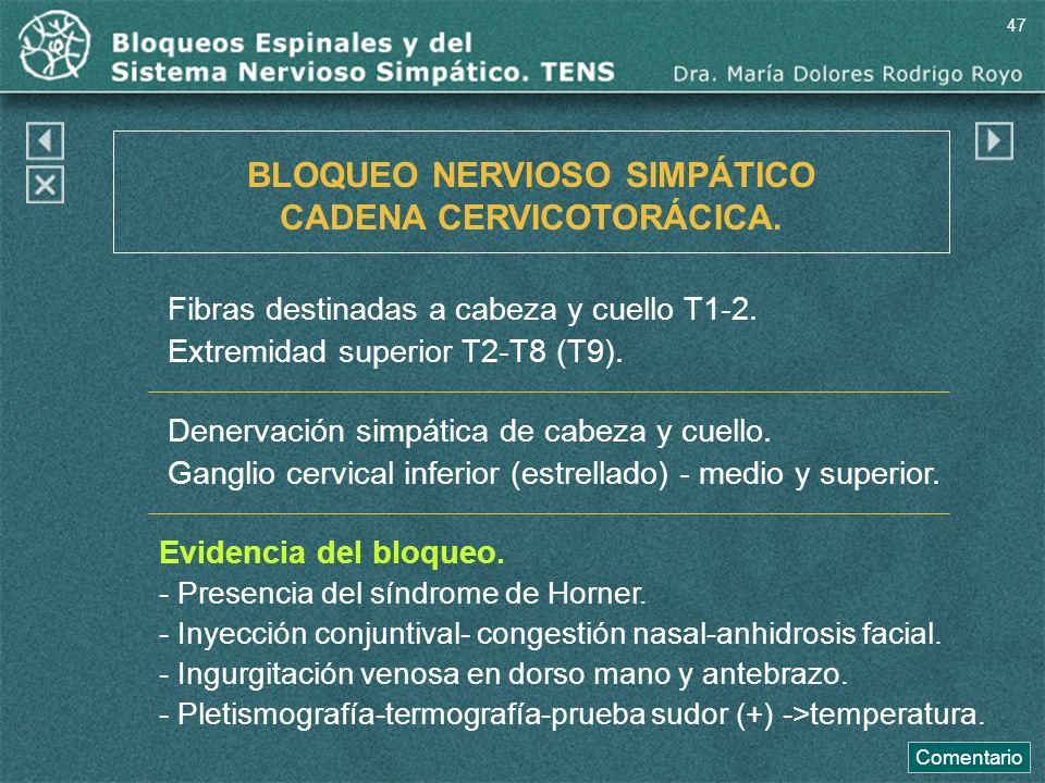 BLOQUEO NERVIOSO SIMPÁTICO CADENA CERVICOTORÁCICA. Fibras destinadas a cabeza y cuello T1-2. Extremidad superior T2-T8 (T9). Denervación simpática de