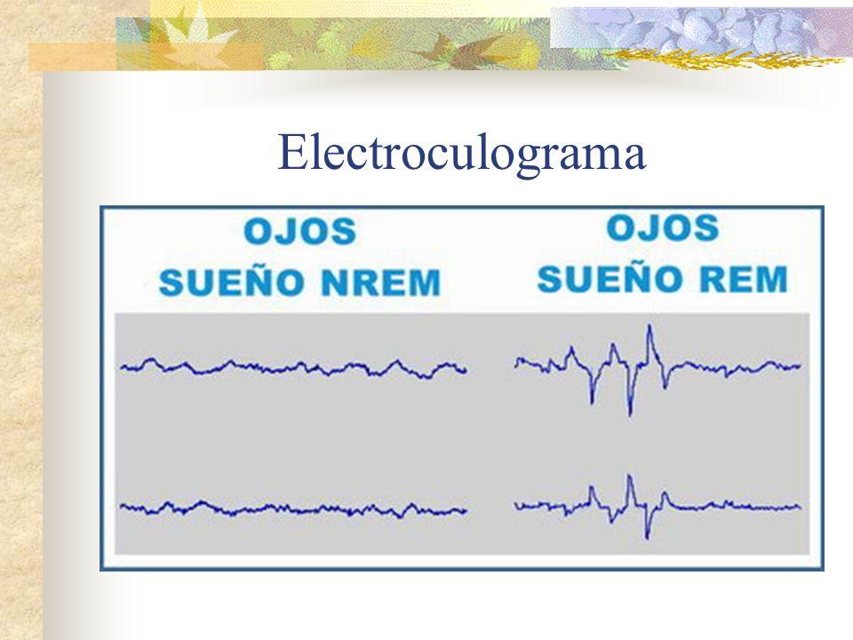 Electroculograma