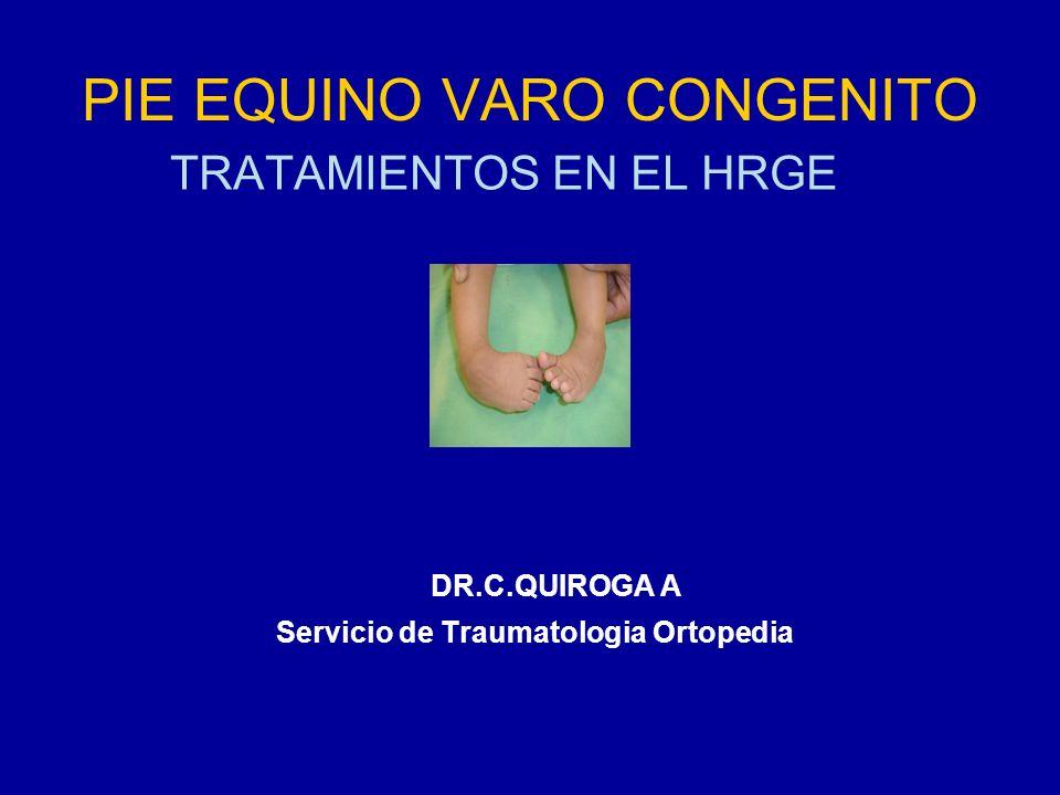 PIE EQUINO VARO CONGENITO TRATAMIENTOS EN EL HRGE DR.C.QUIROGA A Servicio de Traumatologia Ortopedia