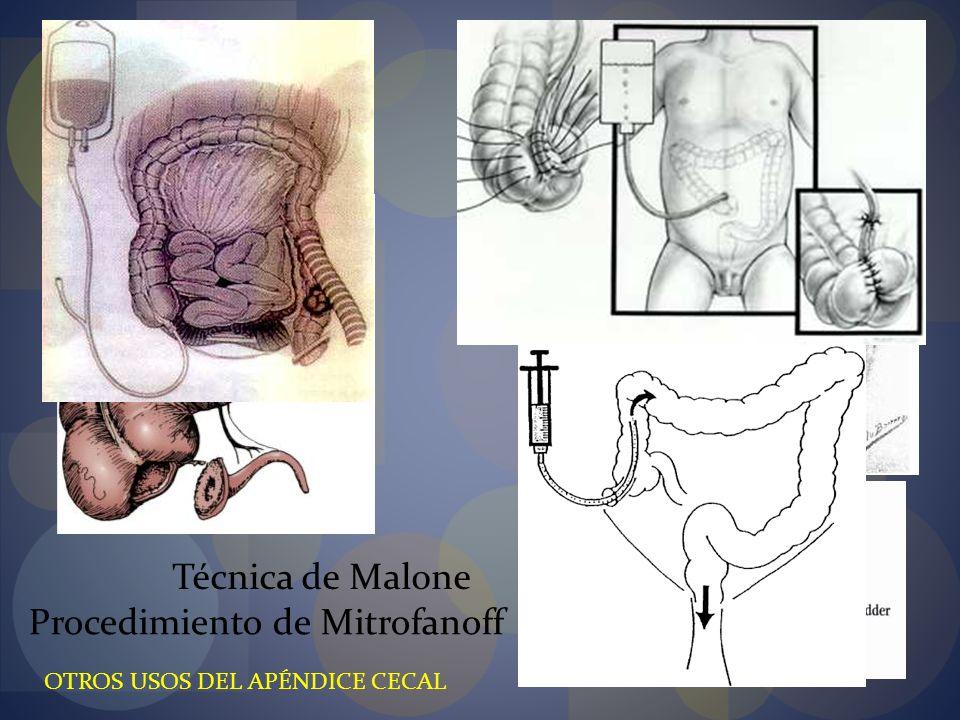 Procedimiento de Mitrofanoff Técnica de Malone OTROS USOS DEL APÉNDICE CECAL