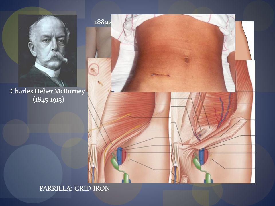 1889.- 1894.- Incisión Gridiron // Lewis Lin McArthur 1905- A.E. Rockey 1906- G.G. Davis Charles Heber McBurney (1845-1913) PARRILLA: GRID IRON