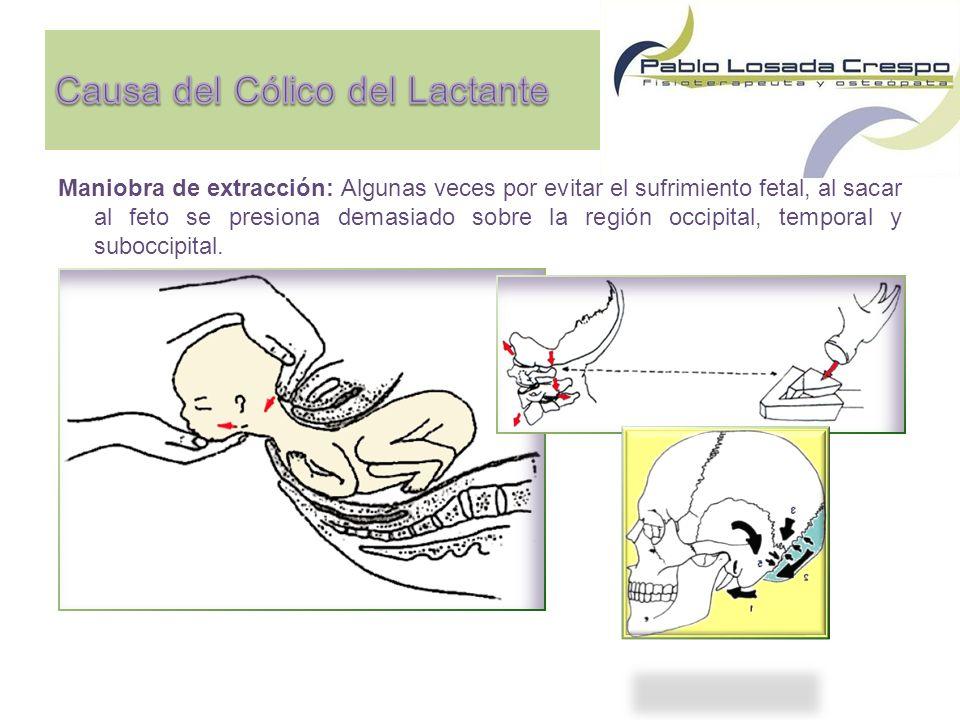Maniobra de extracción: Algunas veces por evitar el sufrimiento fetal, al sacar al feto se presiona demasiado sobre la región occipital, temporal y suboccipital.