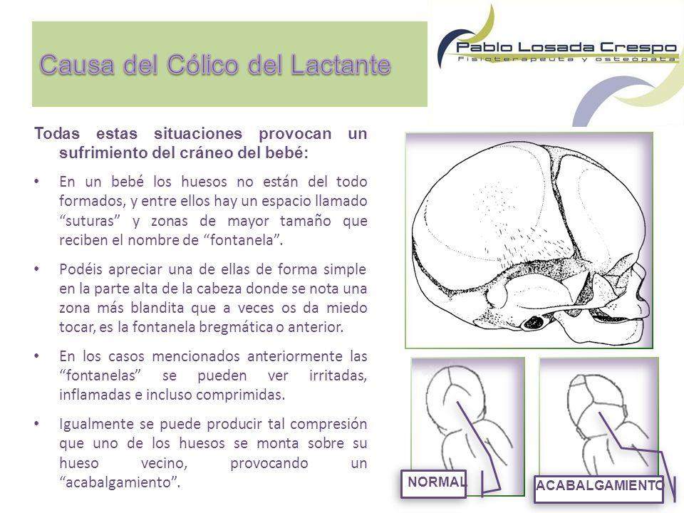 v Todas estas situaciones provocan un sufrimiento del cráneo del bebé: En un bebé los huesos no están del todo formados, y entre ellos hay un espacio llamado suturas y zonas de mayor tamaño que reciben el nombre de fontanela.
