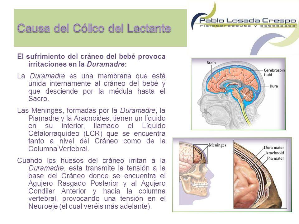 El sufrimiento del cráneo del bebé provoca irritaciones en la Duramadre: La Duramadre es una membrana que está unida internamente al cráneo del bebé y que desciende por la médula hasta el Sacro.