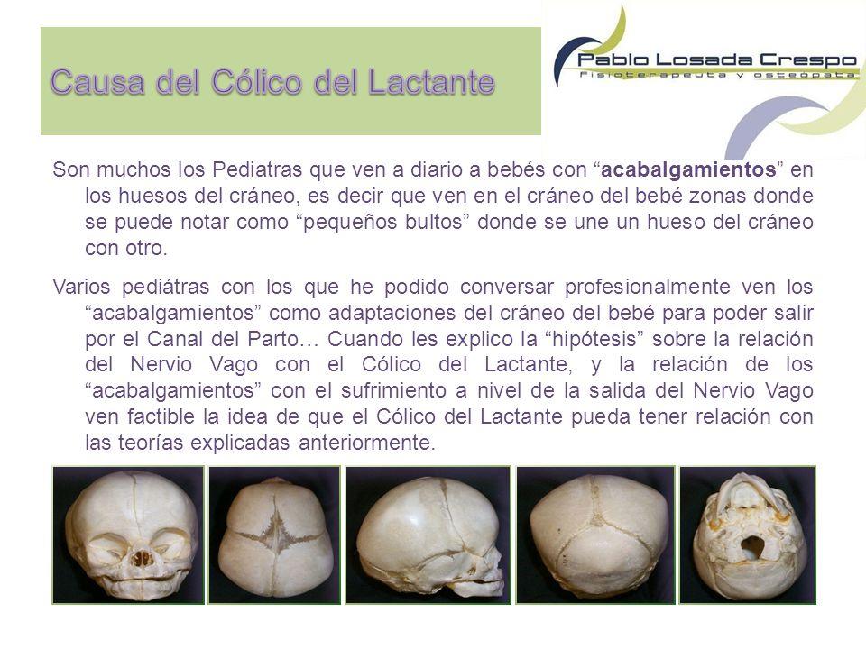 Son muchos los Pediatras que ven a diario a bebés con acabalgamientos en los huesos del cráneo, es decir que ven en el cráneo del bebé zonas donde se puede notar como pequeños bultos donde se une un hueso del cráneo con otro.