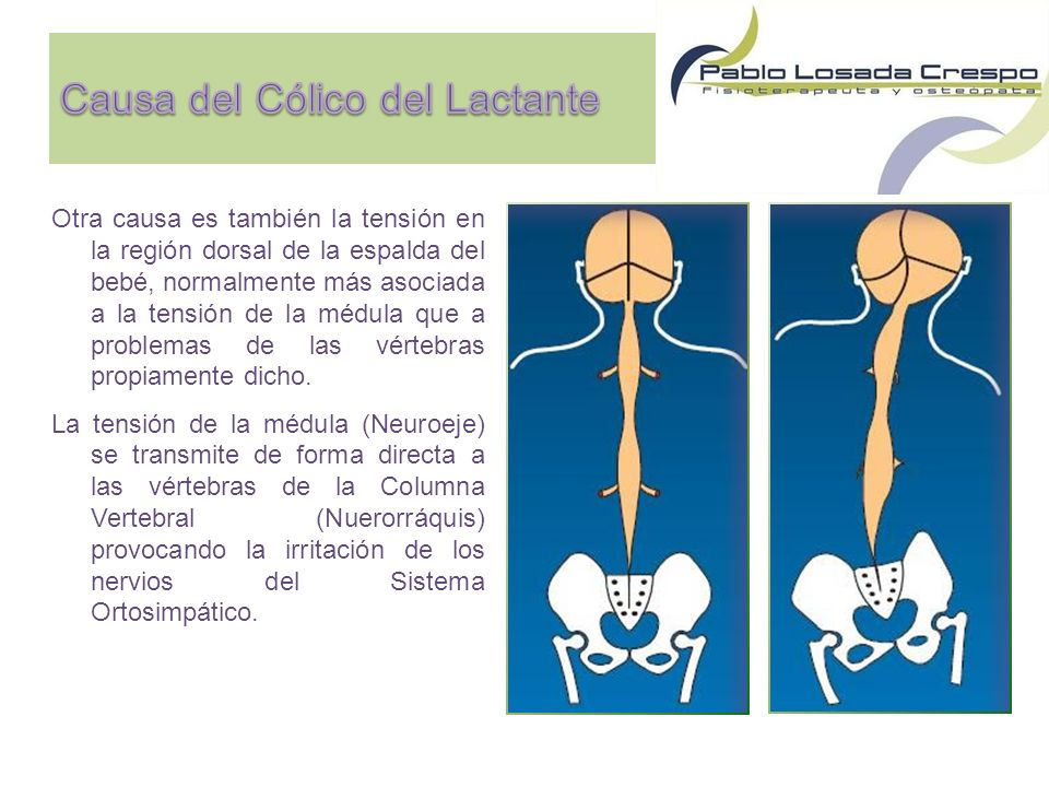Otra causa es también la tensión en la región dorsal de la espalda del bebé, normalmente más asociada a la tensión de la médula que a problemas de las vértebras propiamente dicho.