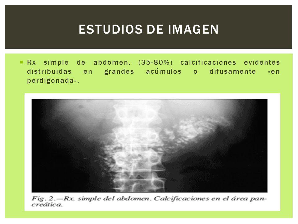 Rx simple de abdomen. (35-80%) calcificaciones evidentes distribuidas en grandes acúmulos o difusamente «en perdigonada». ESTUDIOS DE IMAGEN