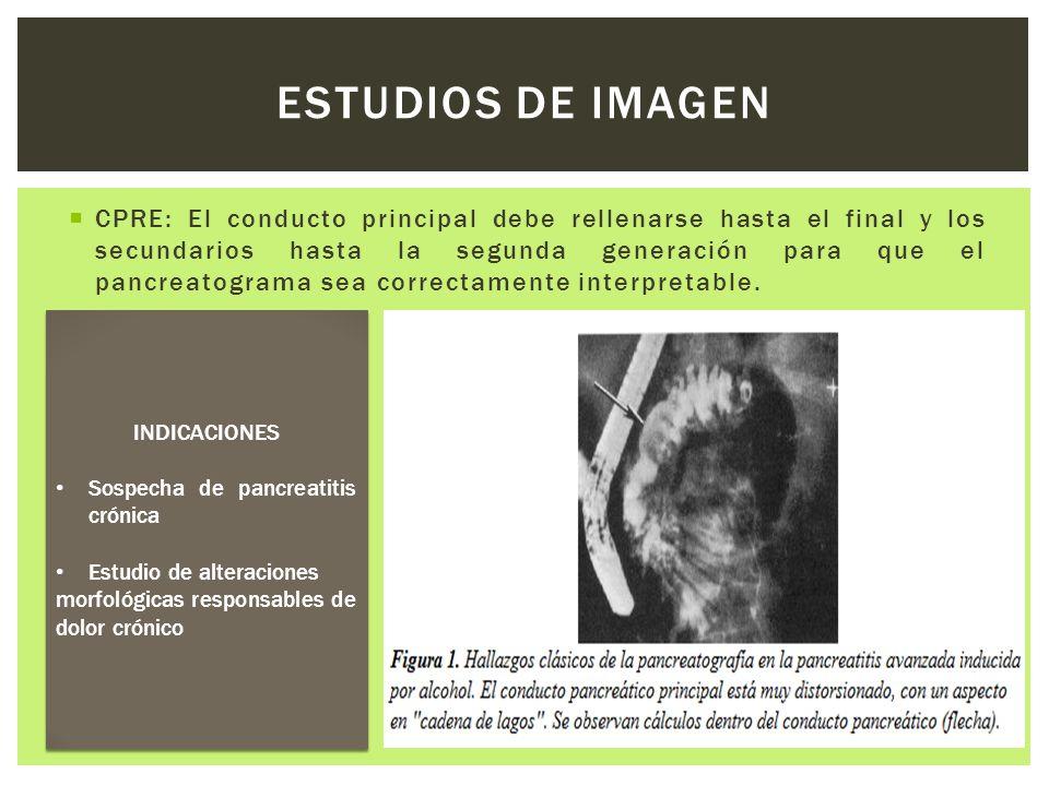 CPRE: El conducto principal debe rellenarse hasta el final y los secundarios hasta la segunda generación para que el pancreatograma sea correctamente
