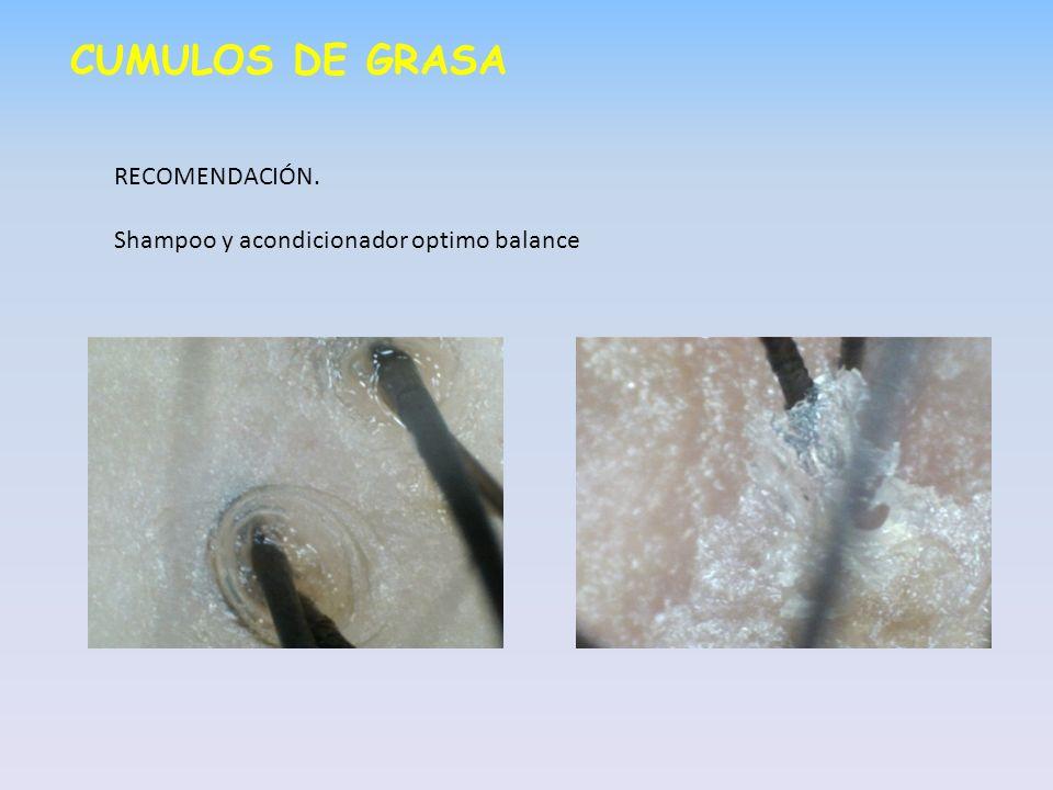CUMULOS DE GRASA RECOMENDACIÓN. Shampoo y acondicionador optimo balance
