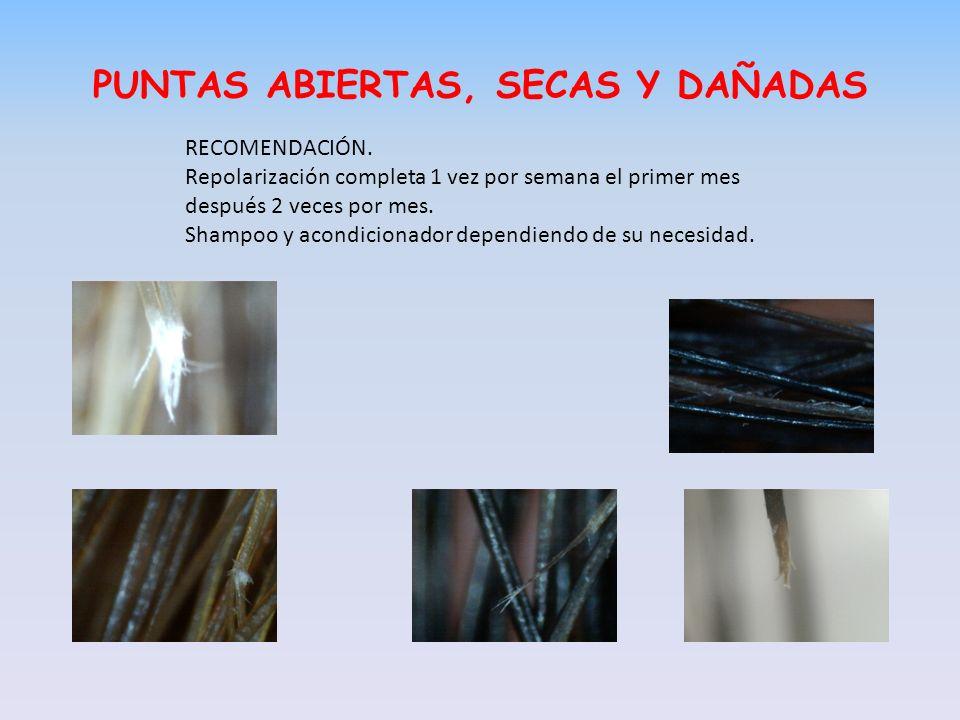 PUNTAS ABIERTAS, SECAS Y DAÑADAS RECOMENDACIÓN.