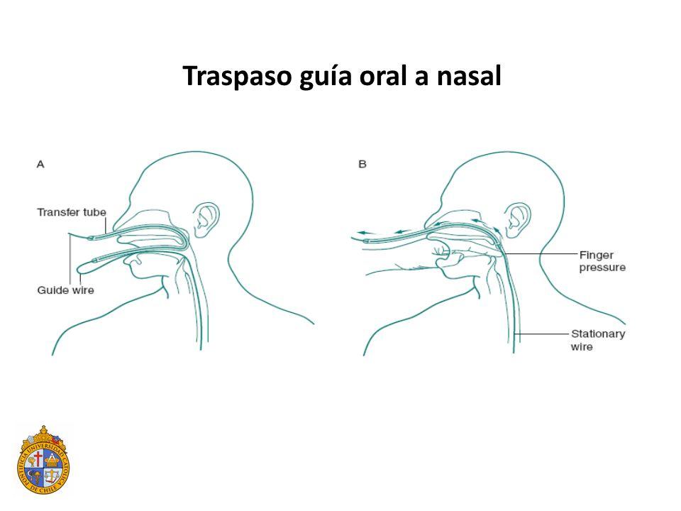 Traspaso guía oral a nasal