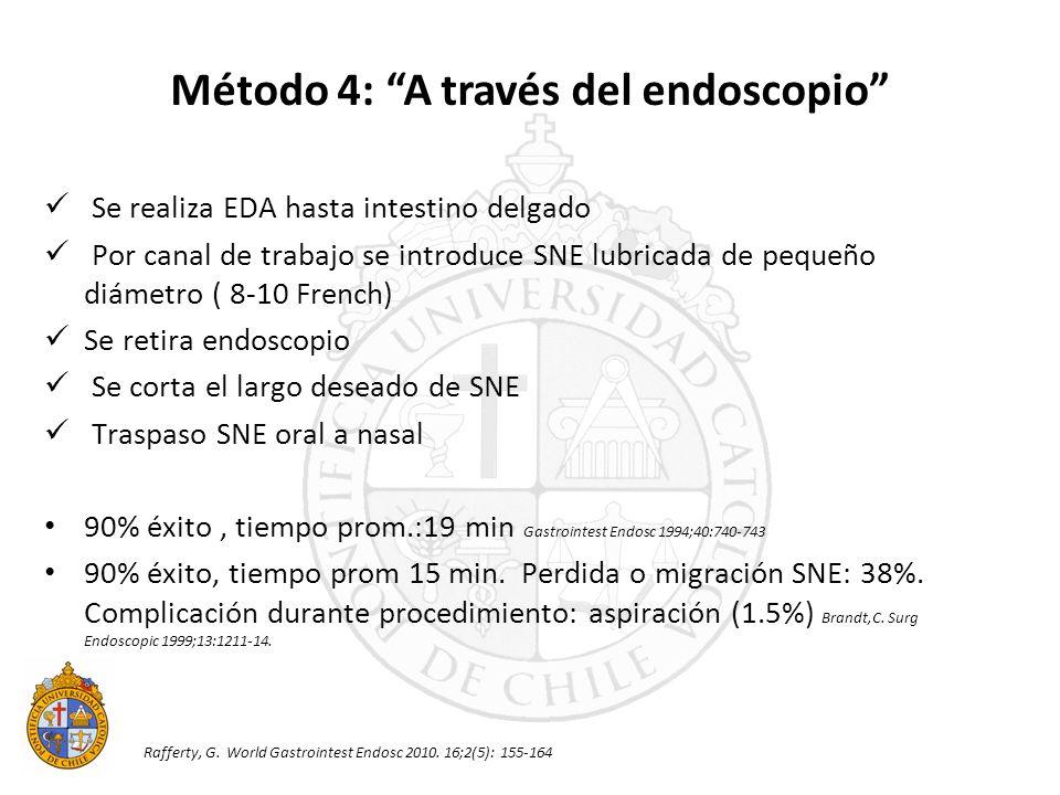 Se realiza EDA hasta intestino delgado Por canal de trabajo se introduce SNE lubricada de pequeño diámetro ( 8-10 French) Se retira endoscopio Se cort