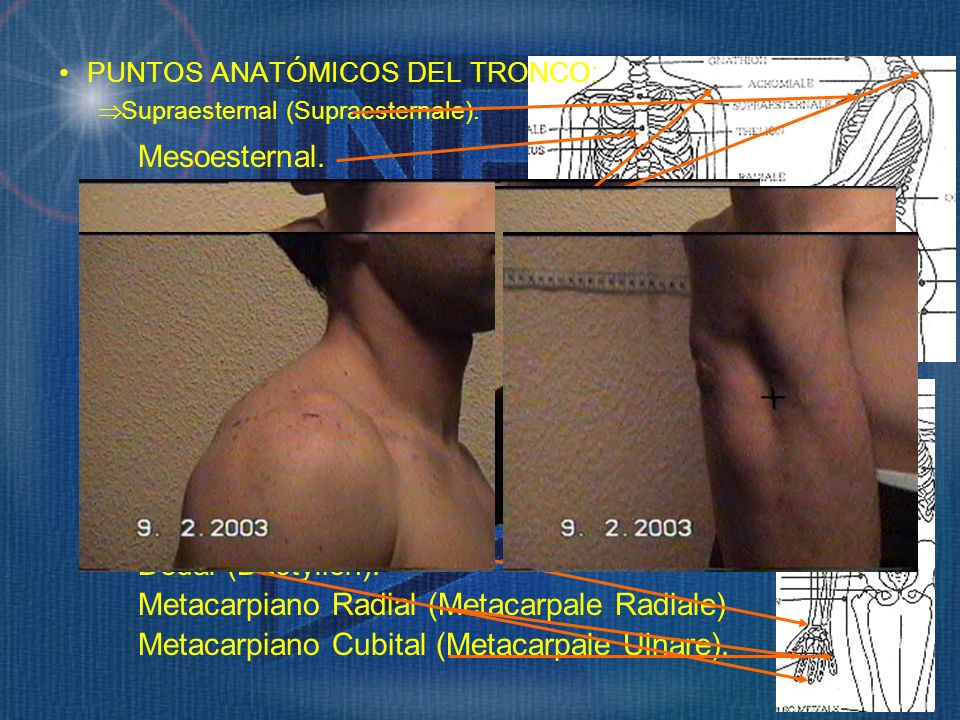 Mesoesternal. Epigástrico (Epigastrale). Cervical (Cervicale). Pubiano (Shymphysion). Umbilical (Omphalion). Glúteo (Gluteale). Radial (Radiale). Esti