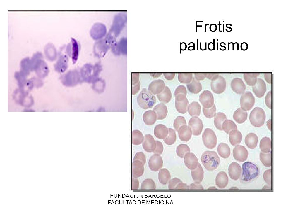 FUNDACION BARCELO FACULTAD DE MEDICINA Frotis paludismo